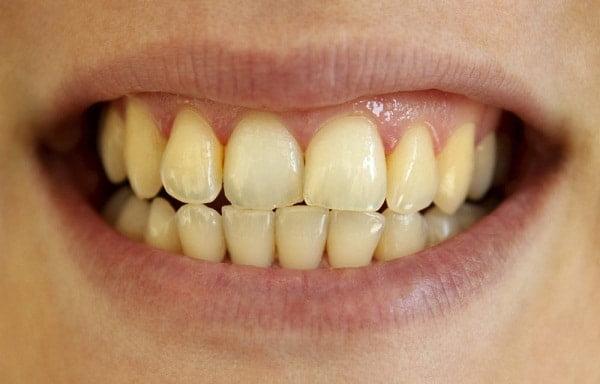 Răng ô vàng do hút thuốc
