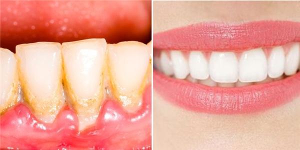Chia sẻ cách làm răng trắng bóng trong 5 phút hiệu quả không tốn nhiều chi phí!
