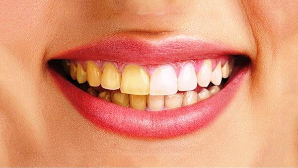 Răng vàng : Nguyên nhân & Cách làm trắng răng bị vàng